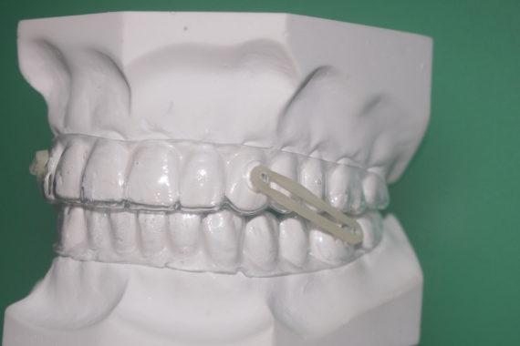GLASS  Ortodonzia funzionale trasparente